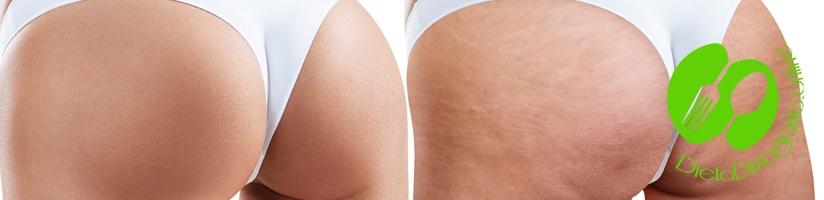 Come Eliminare La Cellulite In Poco Tempo E In Modo Sano